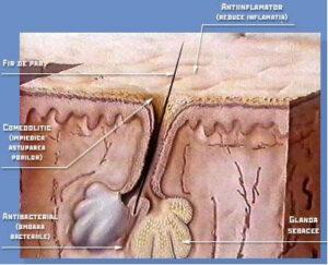 Tratamente acnee